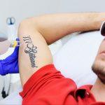 Combien coûte l'enlèvement de tatouage? [2020 Price Guide]