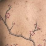 Acné sur le tatouage: comment se comporter (En images) - TattooList
